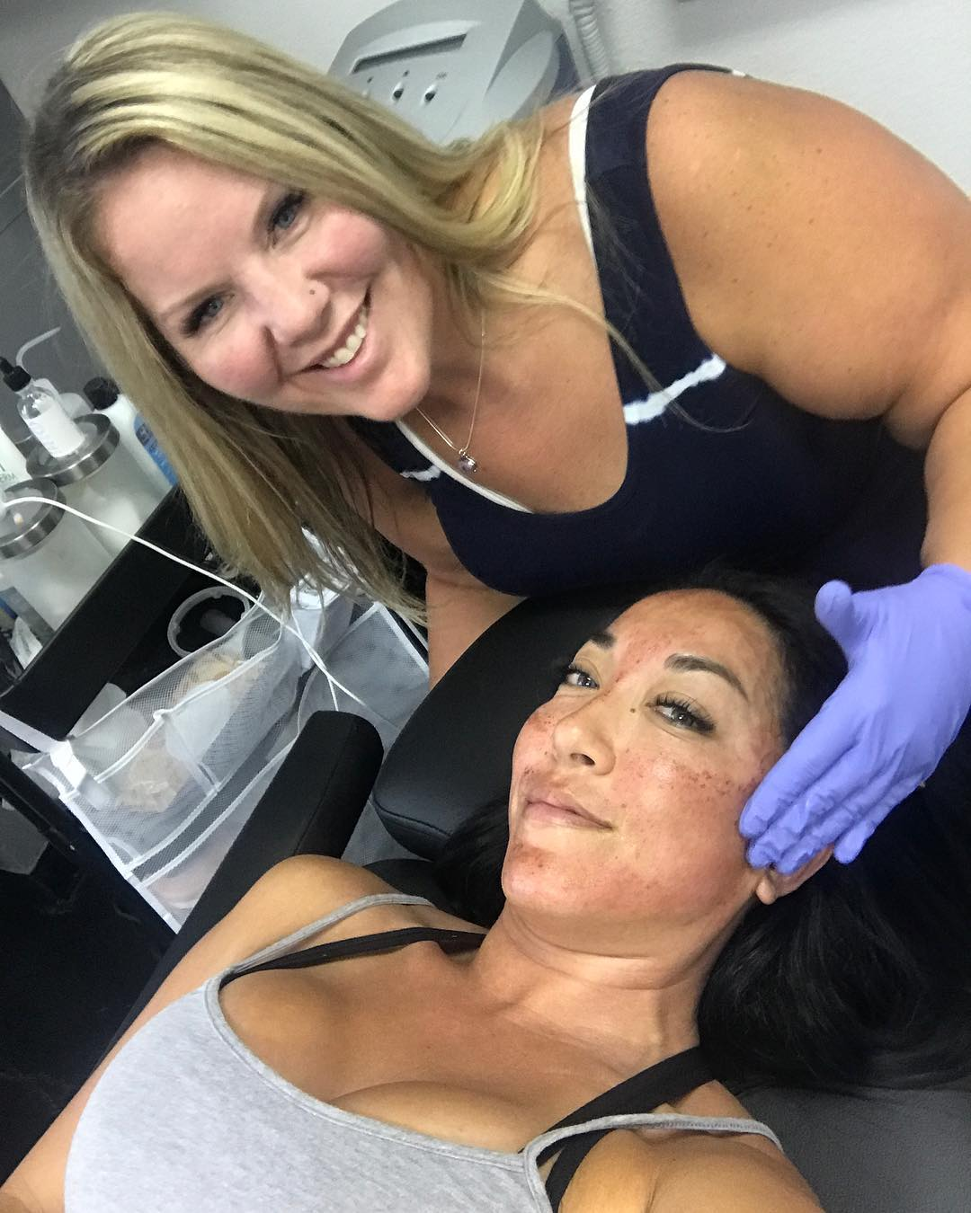 Just had micro needling done…
